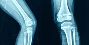 Artroscopia: quando le prove contano
